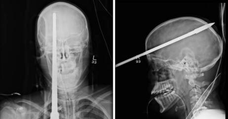 röntgen1